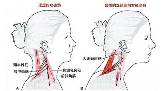 姿勢が良い場合は、首の前後ろの筋肉のバランスが取れています
