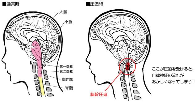 「脳幹」にはコントロ‐ル・体温の調節・睡眠の調整などがあります